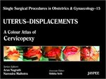 (check pc lowest) Uterus - Displacements - 15 A Colour Atlas of Cervicopexy : Single Surgical Procedures in Obstetrics and Gynaecology: A Colour Atlas of Cervicopexy (Purandare's) Hardcover @302/- MRP 2495/- Free shipping at Amazon